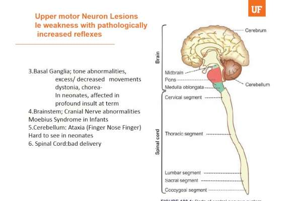 Thumbnail for Upper Motor Neuron Weakness Video